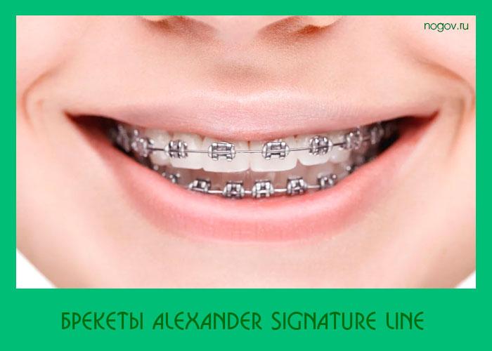 Брекеты Alexander Signature Line